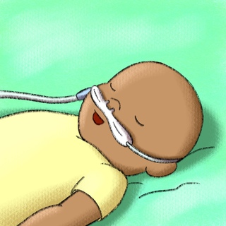 High Flow Nasal Cannula in Bronchiolitis | Part 2 Artwork