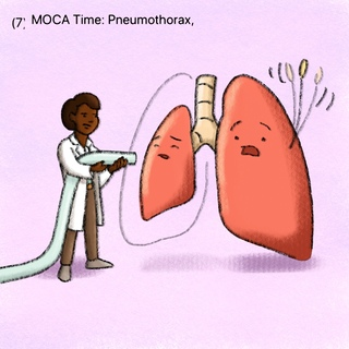 MOCA: Pneumothorax (PTX) Artwork