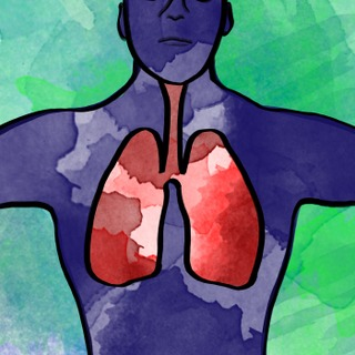 Pediatric Pearls - Community Acquired Pneumonia Artwork