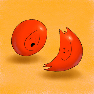 Sickle Cell Disease, Part 2 Artwork