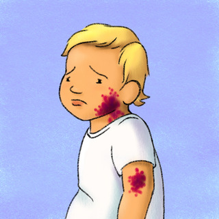 Pediatric Petechiae - Deadly or Not? Artwork