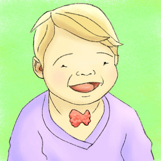 Introduction: Hypothyroidism Concomitant with Down's Syndrome Artwork